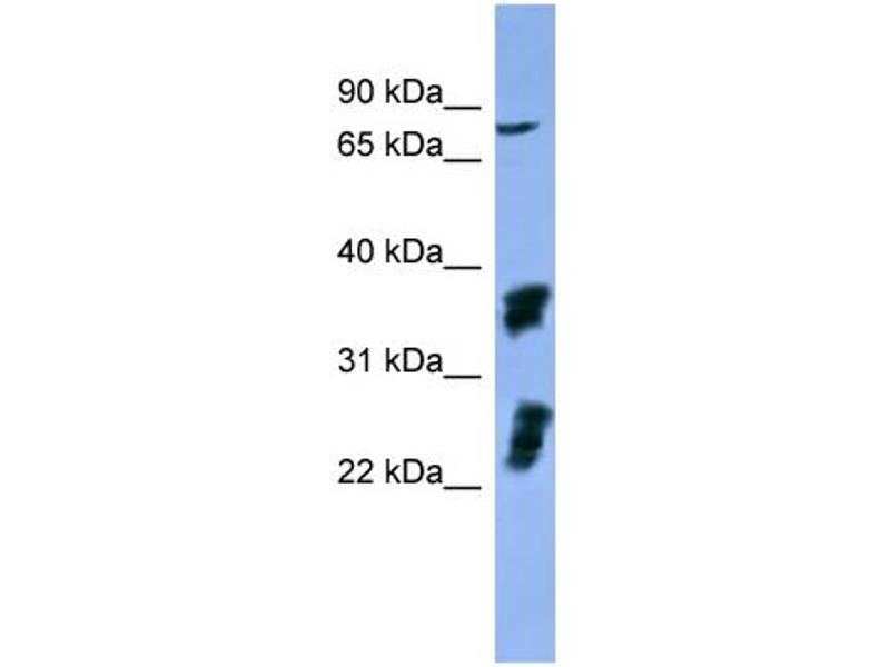 Western Blotting (WB) image for anti-Fibroblast Growth Factor Receptor 2 (FGFR2) (C-Term) antibody (ABIN2788319)