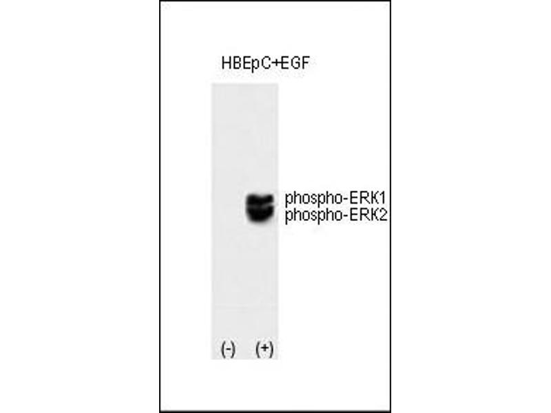 Western Blotting (WB) image for anti-MAPK3 antibody (Mitogen-Activated Protein Kinase 3) (ABIN2445362)