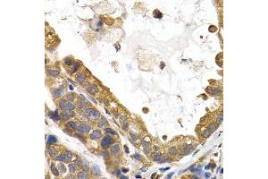 Immunohistochemistry (Paraffin-embedded Sections) (IHC (p)) image for anti-Glycogen Synthase 1 (Muscle) (GYS1) antibody (ABIN3016178)