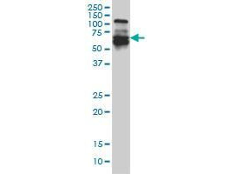Western Blotting (WB) image for anti-Interferon Regulatory Factor 5 (IRF5) (AA 395-505) antibody (ABIN394095)