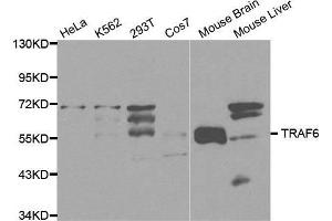 Western Blotting (WB) image for anti-TNF Receptor-Associated Factor 6 (TRAF6) antibody (ABIN3021194)