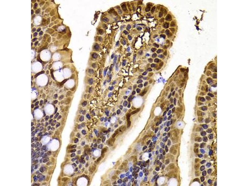 Immunohistochemistry (IHC) image for anti-Exportin 5 (XPO5) antibody (ABIN6570714)