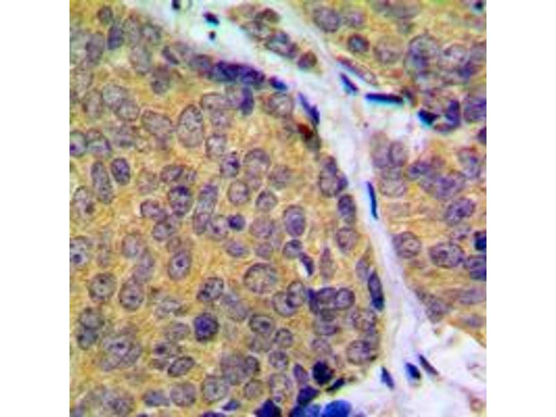 Immunohistochemistry (IHC) image for anti-MAP2K2 antibody (Mitogen-Activated Protein Kinase Kinase 2) (C-Term) (ABIN2704989)