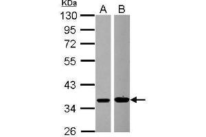 Image no. 1 for anti-Mitogen-Activated Protein Kinase Kinase 6 (MAP2K6) (Center) antibody (ABIN2856213)