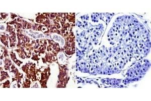 Immunohistochemistry (Paraffin-embedded Sections) (IHC (p)) image for anti-Prolactin Receptor antibody (PRLR) (ABIN152690)