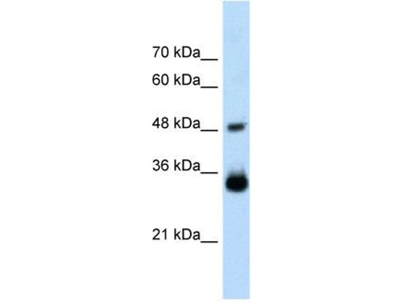Western Blotting (WB) image for anti-HOXC9 antibody (Homeobox C9) (Middle Region) (ABIN2776470)