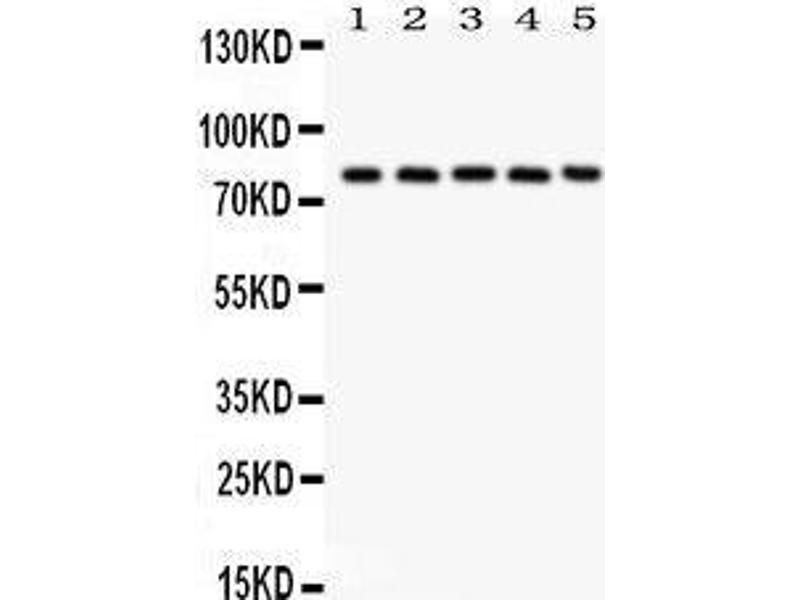 Western Blotting (WB) image for anti-CAPNL1 antibody (Calpain 1, Large Subunit) (AA 396-555) (ABIN3043467)