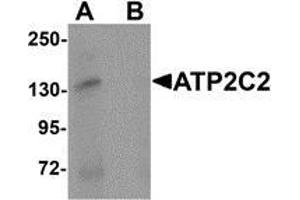 Western Blotting (WB) image for anti-ATPase, Ca++ Transporting, Type 2C, Member 2 (ATP2C2) (N-Term) antibody (ABIN783440)