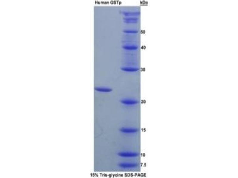 Glutathione S-Transferase pi 1 (GSTP1) ELISA Kit (2)