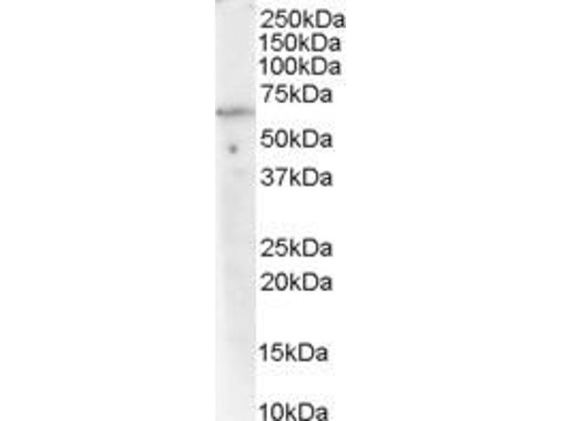 Western Blotting (WB) image for anti-PPP2R1A Antikörper (Protein Phosphatase 2, Regulatory Subunit A, alpha) (C-Term) (ABIN250350)