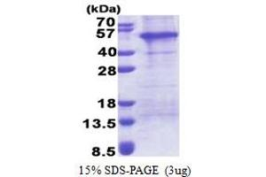 Image no. 1 for Adaptor-Related Protein Complex 1 Associated Regulatory Protein (AP1AR) (AA 1-302) protein (His tag) (ABIN6387289)