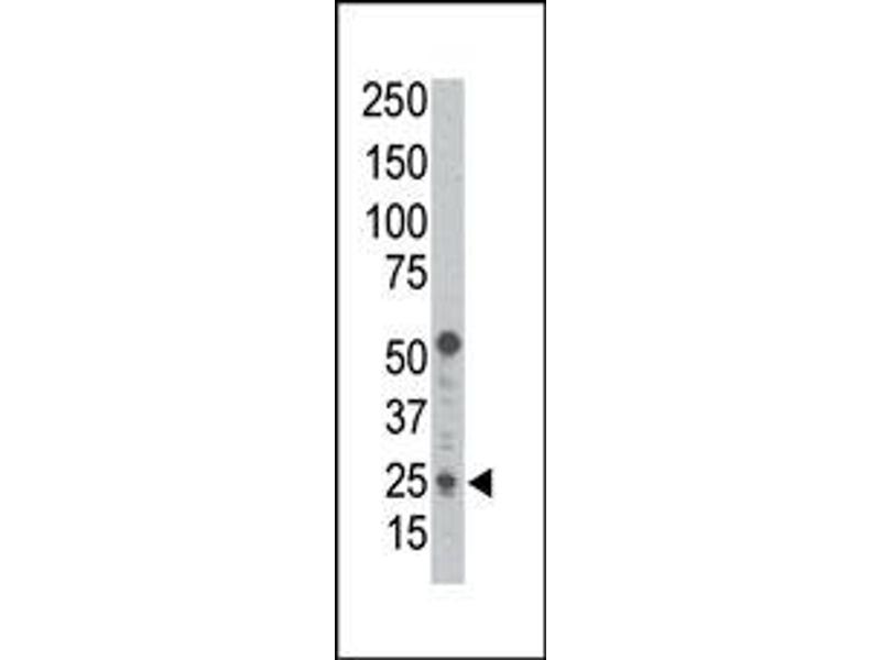 image for anti-BCL2 Binding Component 3 (BBC3) (BH3 Domain), (C-Term) antibody (ABIN356830)