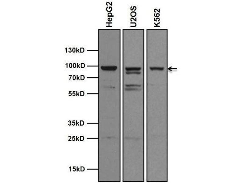Western Blotting (WB) image for anti-Aryl Hydrocarbon Receptor (AHR) antibody (ABIN152689)