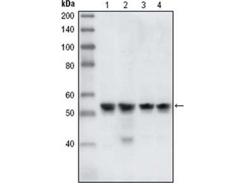 Western Blotting (WB) image for anti-CHEK1 antibody (Checkpoint Kinase 1) (ABIN1106682)