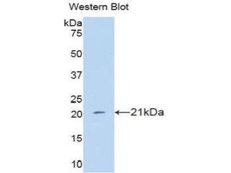 Western Blotting (WB) image for anti-Interferon, alpha 4 (IFNa4) (AA 10-163) antibody (ABIN1859265)