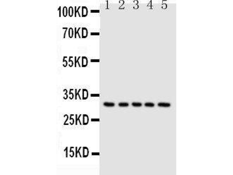 Western Blotting (WB) image for anti-Caspase 6 antibody (Caspase 6, Apoptosis-Related Cysteine Peptidase) (AA 7-27) (ABIN3043219)