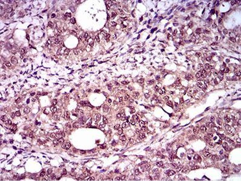 Immunohistochemistry (IHC) image for anti-T Antigen (AA 257-309) antibody (ABIN1098136)