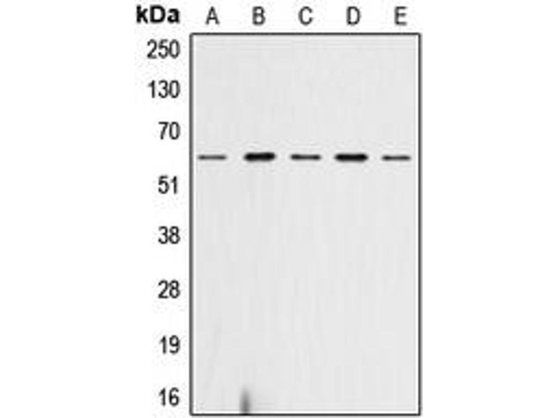 Western Blotting (WB) image for anti-AKT antibody (V-Akt Murine Thymoma Viral Oncogene Homolog 1) (C-Term) (ABIN2704461)