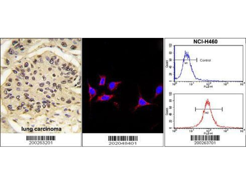 Immunohistochemistry (IHC) image for anti-SOX2 antibody (SRY (Sex Determining Region Y)-Box 2) (ABIN387798)