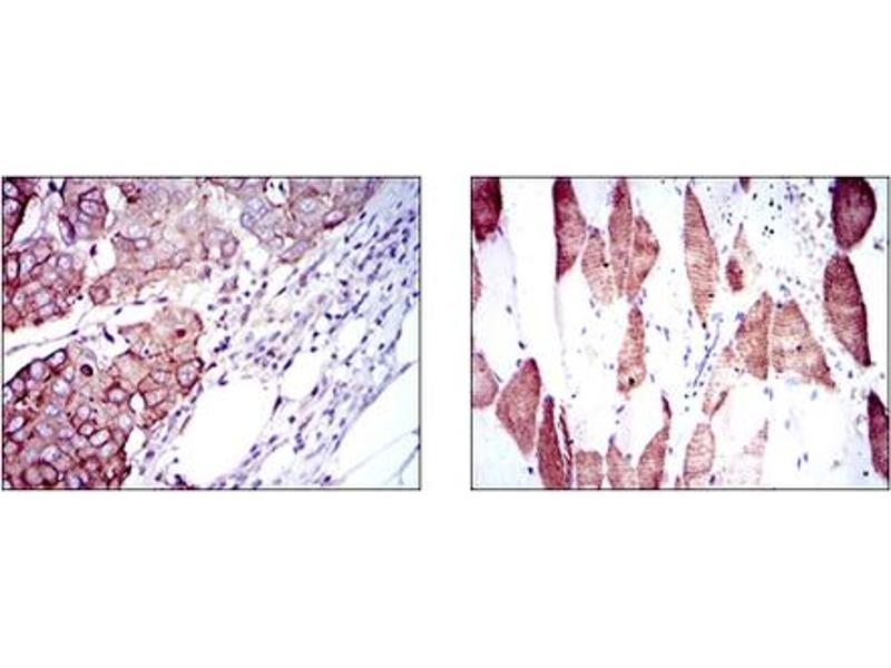Immunohistochemistry (IHC) image for anti-RPS6KB1 antibody (Ribosomal Protein S6 Kinase, 70kDa, Polypeptide 1) (ABIN1108904)