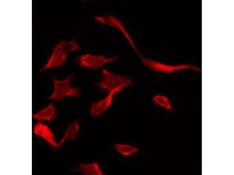 Image no. 2 for anti-Caspase 3 (CASP3) antibody (ABIN6269461)
