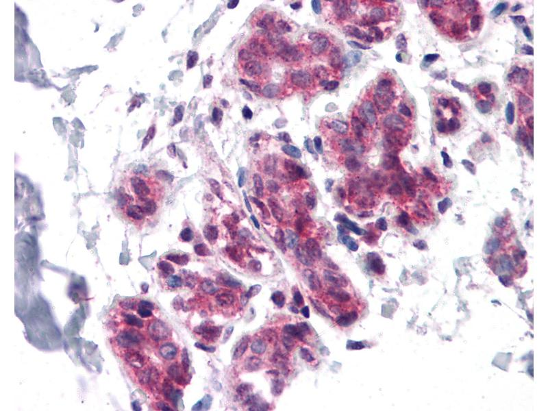 Immunohistochemistry (IHC) image for anti-Cell Division Cycle 27 Homolog (S. Cerevisiae) (CDC27) (C-Term) antibody (ABIN604729)