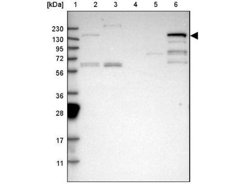 Western Blotting (WB) image for anti-Phospholipase C gamma 2 (PLCG2) antibody (ABIN4346133)
