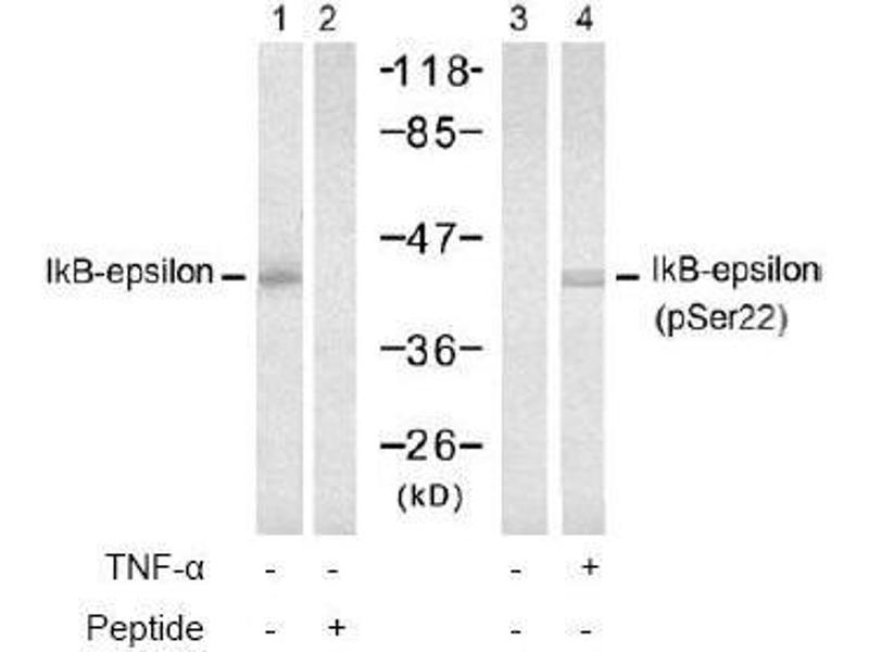 image for anti-NFKBIE antibody (Nuclear Factor of kappa Light Polypeptide Gene Enhancer in B-Cells Inhibitor, epsilon) (pSer22) (ABIN196949)