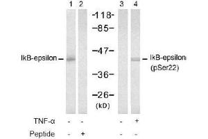 image for anti-Nuclear Factor of kappa Light Polypeptide Gene Enhancer in B-Cells Inhibitor, epsilon (NFKBIE) (pSer22) antibody (ABIN196948)
