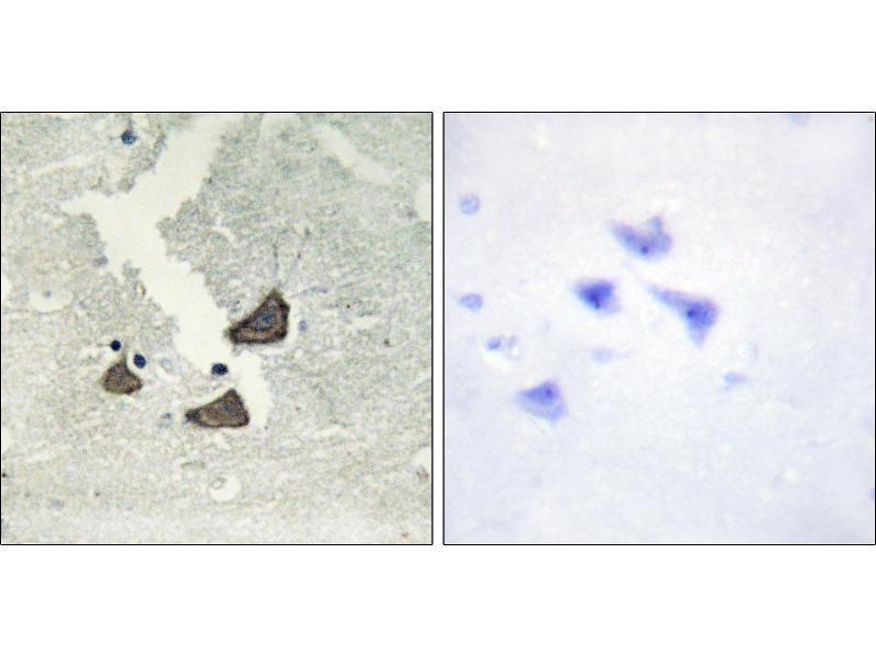 Image no. 3 for anti-EPH Receptor B6 (EPHB6) antibody (ABIN1576322)