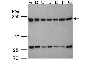 Image no. 2 for anti-TBP-Associated Factor 172 (BTAF1) (C-Term) antibody (ABIN2856344)