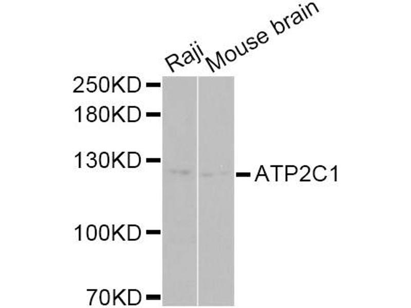Image no. 1 for anti-ATPase, Ca++ Transporting, Type 2C, Member 1 (ATP2C1) antibody (ABIN6569245)