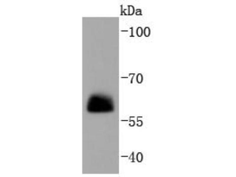 Western Blotting (WB) image for anti-Paxillin (PXN) (AA 1-100) antibody (ABIN5947560)