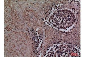 Image no. 4 for anti-Coagulation Factor III (thromboplastin, Tissue Factor) (F3) (Internal Region) antibody (ABIN3180998)