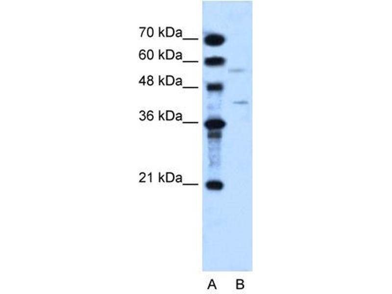 Western Blotting (WB) image for anti-DHOdehase (N-Term) antibody (ABIN310257)