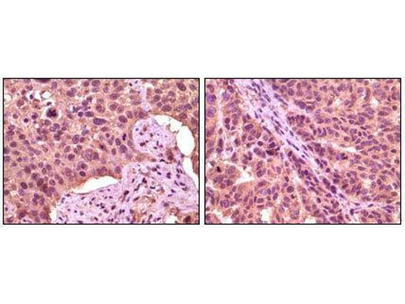 Immunohistochemistry (IHC) image for anti-GSK3 alpha antibody (Glycogen Synthase Kinase 3 alpha) (ABIN969179)