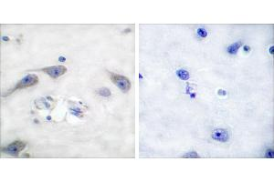 Image no. 1 for anti-Protein Phosphatase 1, Regulatory (Inhibitor) Subunit 1B (PPP1R1B) (Thr75) antibody (ABIN1576023)