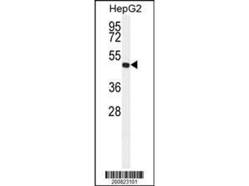 Western Blotting (WB) image for anti-ALDH3A2 antibody (Aldehyde Dehydrogenase 3 Family, Member A2) (ABIN659009)