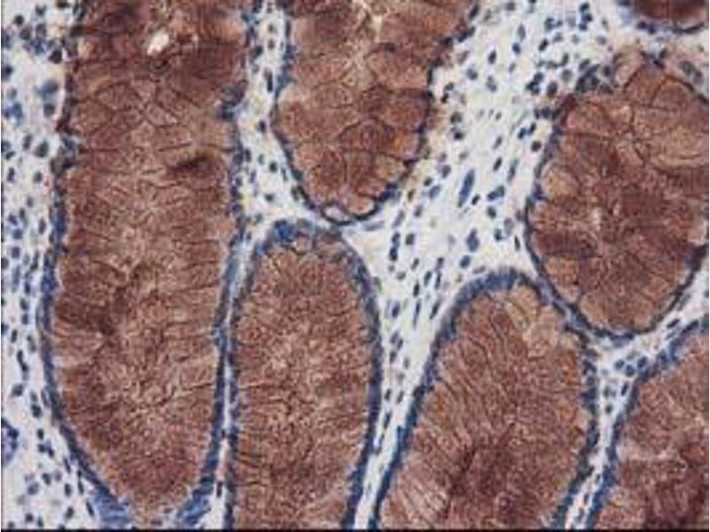 Immunohistochemistry (IHC) image for anti-KATNB1 antibody (Katanin P80 (WD Repeat Containing) Subunit B 1) (ABIN2455185)