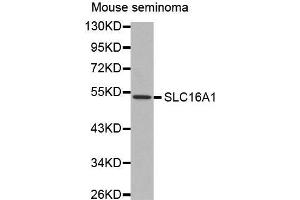 Image no. 2 for anti-Solute Carrier Family 16, Member 1 (Monocarboxylic Acid Transporter 1) (SLC16A1) antibody (ABIN3017184)