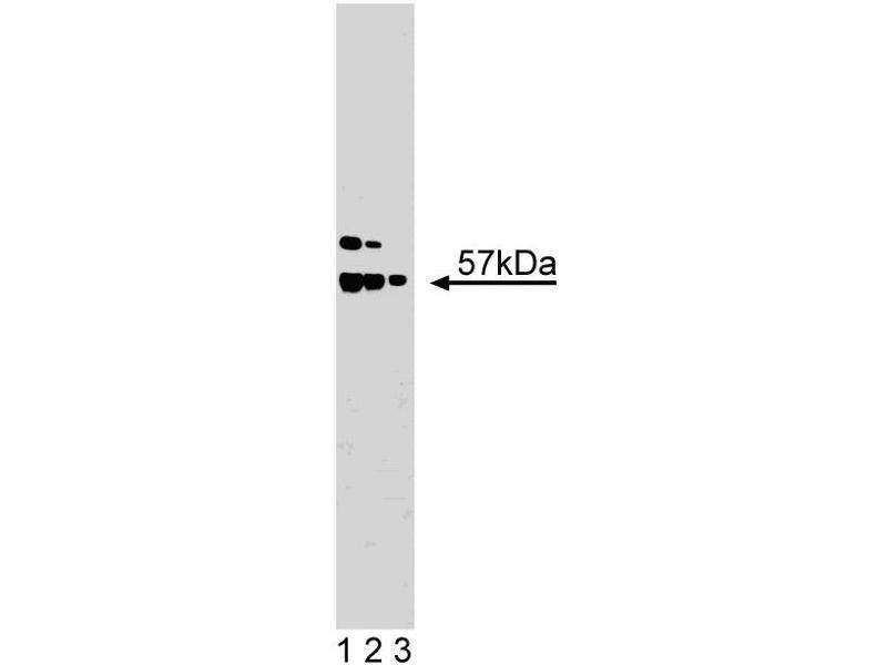 Western Blotting (WB) image for anti-XIAP antibody (X-Linked Inhibitor of Apoptosis) (AA 268-426) (ABIN968163)