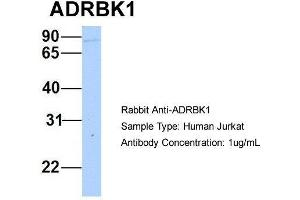 Image no. 1 for anti-Adrenergic, Beta, Receptor Kinase 1 (ADRBK1) (N-Term) antibody (ABIN2784714)
