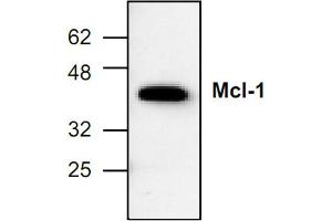 image for anti-MCL-1 antibody (Induced Myeloid Leukemia Cell Differentiation Protein Mcl-1) (ABIN285856)
