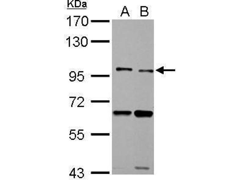 Western Blotting (WB) image for anti-Toll-Like Receptor 5 (TLR5) (N-Term) antibody (ABIN2855432)