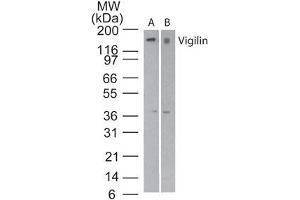 Image no. 1 for anti-High Density Lipoprotein Binding Protein (HDLBP) (AA 500-550) antibody (ABIN960198)