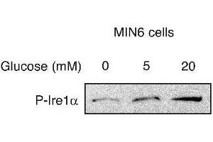 Western Blotting (WB) image for anti-ERN1 抗体 (Endoplasmic Reticulum To Nucleus Signaling 1) (pSer724) (ABIN250706)