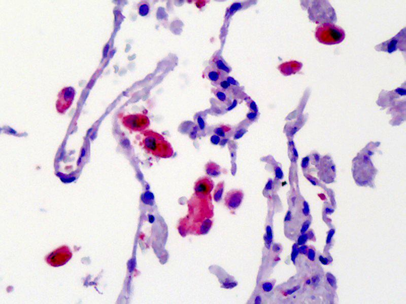 Immunohistochemistry (IHC) image for anti-Calcium/calmodulin-Dependent Protein Kinase (CaM Kinase) II beta (CAMK2B) antibody (ABIN462429)