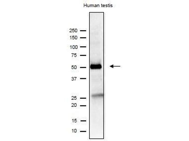 Image no. 4 for anti-Izumo Sperm-Egg Fusion 1 (IZUMO1) antibody (ABIN2452040)