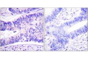 Immunohistochemistry (IHC) image for anti-WAS Protein Family, Member 1 (WASF1) (AA 91-140), (pTyr125) antibody (ABIN1531413)