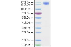 Image no. 1 for SARS-CoV-2 Spike S1 (Active) protein (His tag,Fc Tag) (ABIN6952732)